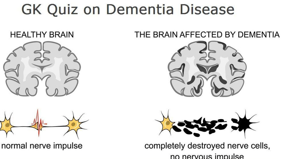 GK Questions and Answers on Dementia disease