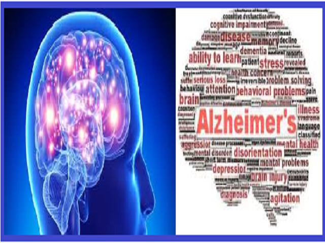 10 important facts about Alzheimer's disease